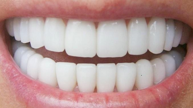 Ingin Gigi Putih Maksimal Dalam 1 Minggu Lakukan 5 Cara Ini