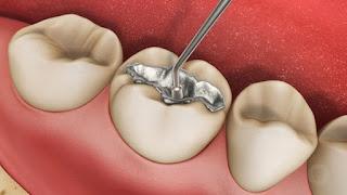 Khi nào nên đi trám răng là tốt nhất và đảm bảo an toàn?