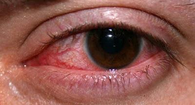 Penyebab dan Cara Alami Mengobati Mata Merah