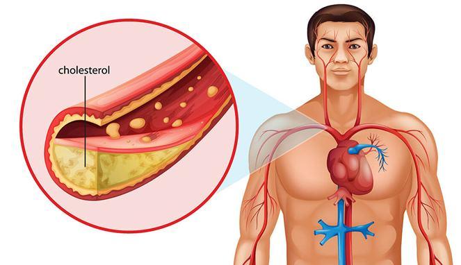Cuka Apel dapat Hancurkan Kolesterol