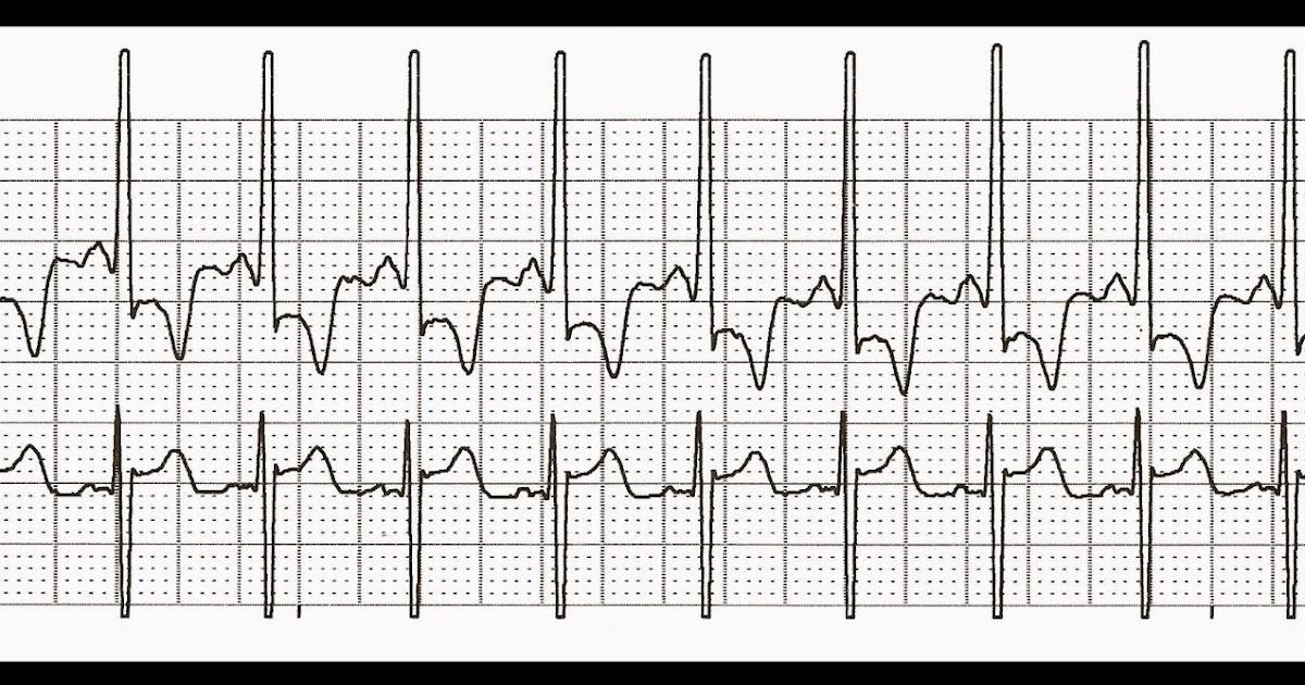 Float Nurse: Practice EKG Strips 395