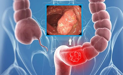 Oil Destroys 93% of Colon Cancer Cells In 2 Days