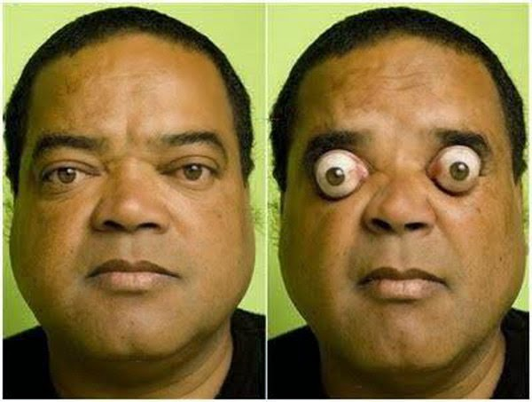 5. आई पॉपिंग मैन (The Eye-Popping Man, Claudio Pinto), Hindi, Information, Jankari, History, Story, Kahani,