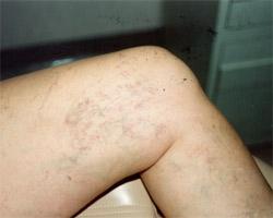 Broken Capillaries/ Thread Veins/ Telangiectasia -