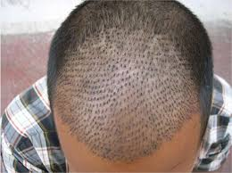 Chennai hair-transplant tragedy
