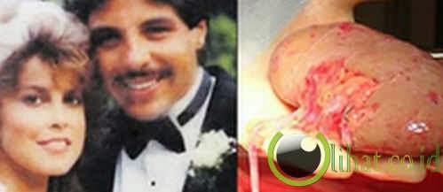 Selingkuh setelah diberi donor ginjal oleh suami