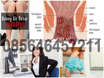 Obat Wasir Internal Berdarah Apotik Online