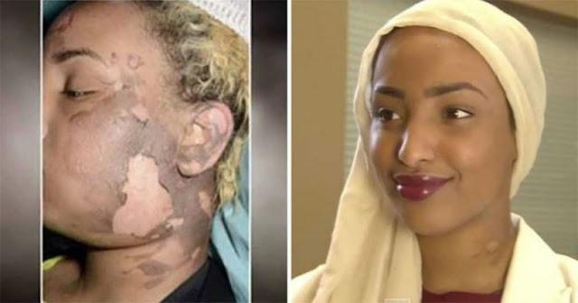 Έκανε τατουάζ στο μισό της πρόσωπο και η ζωή της ξεκίνησε απ΄την αρχή