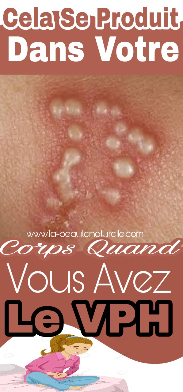 Cela se produit dans votre corps quand vous avez le VPH