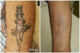 Hasil Testimonal Menggunakan Obat Tattonox