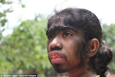 Gadis 12 Tahun Ini Seluruh Tubuhnya Mirip Seperti Monyet