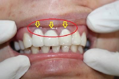 những điều nên biết về trồng răng sứ titan -7