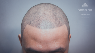 Hair Tattoo công nghệ xăm chân tóc sẽ giúp bạn che đậy khuyết điểm