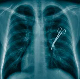 Impericia y negligencias médicas
