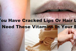 Do You Notice These Symptoms in Your Body? Check This to know the Solution For Them!