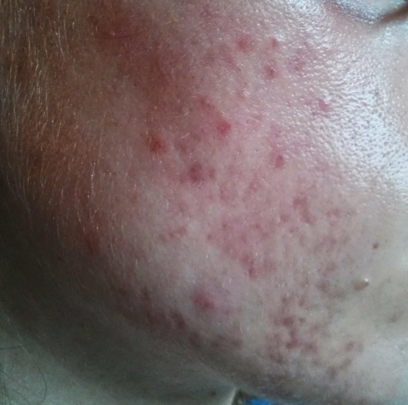 c969d55a2738 Ce n est pas flagrant car il y a beaucoup de cicatrices et j ai pris la  photo juste après un nettoyage à l eau et à l Effaclar (ma peau ...