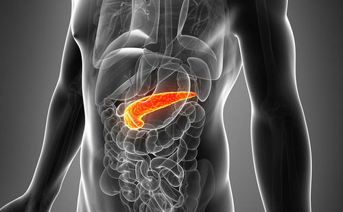 Cancer of the Pancreas, the Silent Killer for Many People
