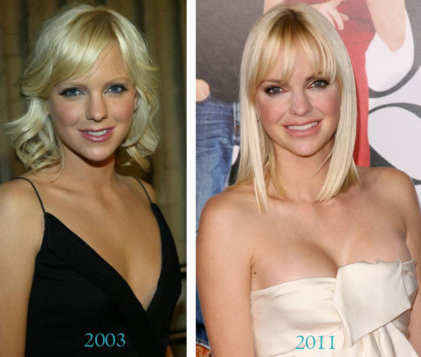 Anna Faris looks even hotter after her boob job
