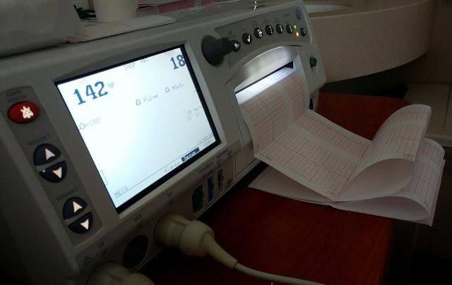 Fetal-Monitor-tasteasyougo.com
