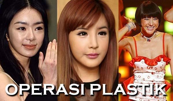 Aneh! 5 Wajah Artis Korea Ini Berubah Jadi Aneh Setelah Operasi Plastik