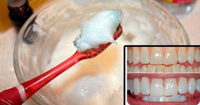 Pasta dental casera que deja los dientes limpios y relucientes.