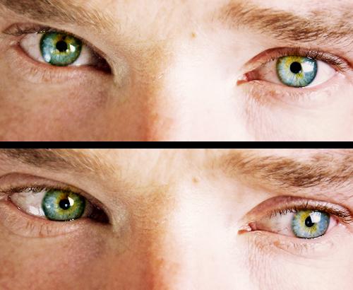 Unterschiedlich Große Augen