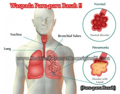 Penyebab Paru Paru Basah / Pneumonia & Obat Paru Paru Basah Tradisional yang Terbukti Ampuh, Efektif dan Aman