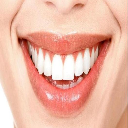 cara tradisional memutihkan gigi