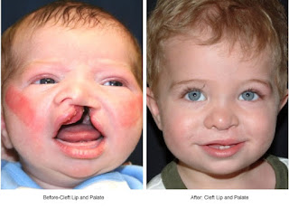 Cleft Lip And Palate - Before After