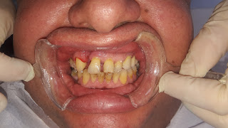 Estetik dişler için zirkonyum kaplama