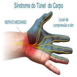 Não atrasar o tratamento para a síndrome do túnel do carpo