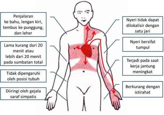 manifestasi klinis tanda dan gejala Angina Pektoris Pectoris