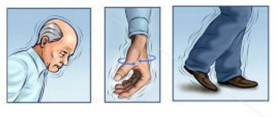 Doxiciclina para Parkinson: Antibiótico para espinhas graves
