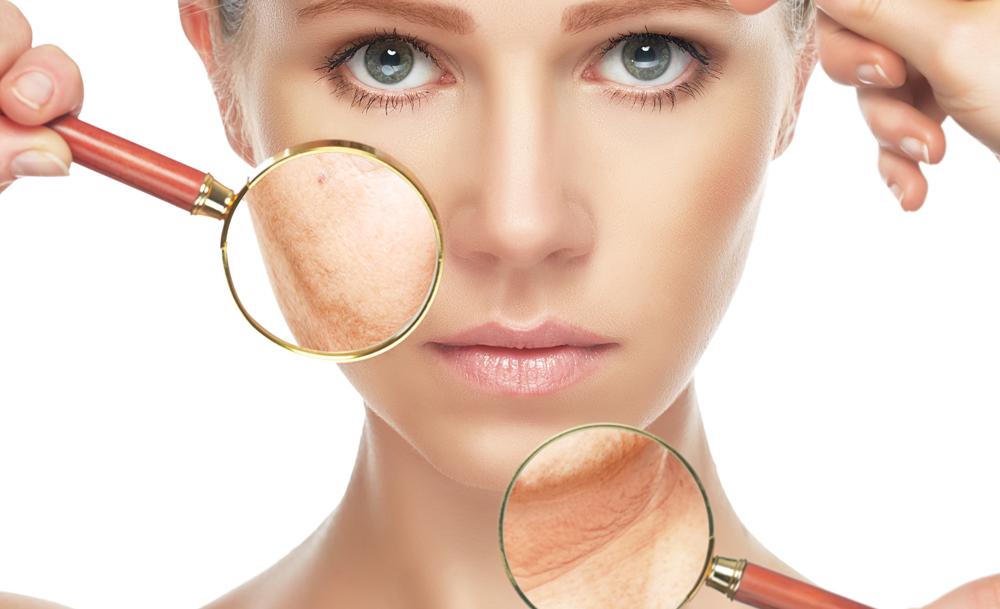 """Résultat de recherche d'images pour """"skin problem"""""""