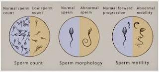 Terdapat beberapa beberapa jenis gangguan pada sperma yang biasa terjadi pada pria,ada yang volumenya sedikit dan ada pula yang bentuk serta ukuranya yang tidak normal.