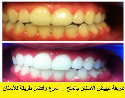 طريقة تبييض الأسنان بالملح طريقة سهلة وناجحة 100 % شاهد قبل التجربة