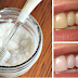 WHITEN YOUR TEETH NATURALLY USING 2 INGREDIENTS ONLY