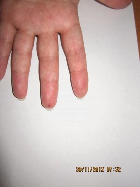Eliminar dolores inconcretos con Acupuntura Casera