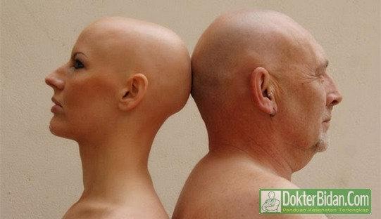 Botak - Penyebab Gejala Diagnosis dan Cara Menumbuhkan Rambut Dengan Cepat