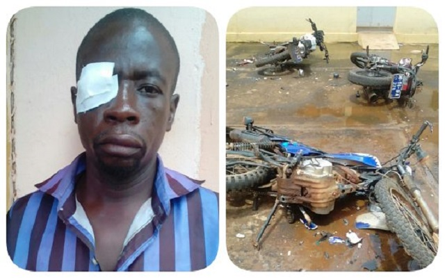 NPP and NDC supporters clash, Man loses one eye