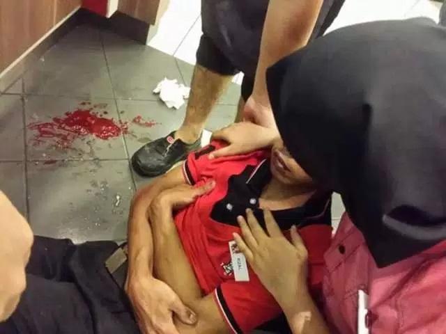Adik OKU Dipukul Teruk Sampai Retak Tulang Pipi, Tapi Polis Lepaskan Begitu Saja?