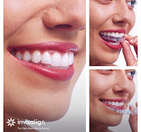 milton keynes dentist straight teeth with invisalign