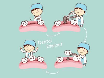 best dental implants in Bangalore
