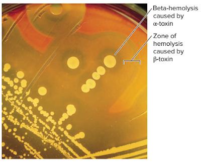macam macam bakteri Staphylococcus, ciri ciri bakteri Staphylococcus, ciri ciri bakteri, Staphylococcus aureus, koloni Staphylococcus aureus, enzim Staphylococcus aureus, racun, Staphylococcus aureus, toxin Staphylococcus aureus, Faktor virulensi yang dimiliki oleh bakteri Staphylococcus aureus, Staphylococcus aureus adalah, penyakit yang disebabkan oleh bakteri Staphylococcus aureus