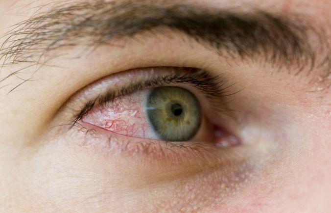 Pengertian Ablasi Retina, Gejala,Penyebab dan Pengobatan