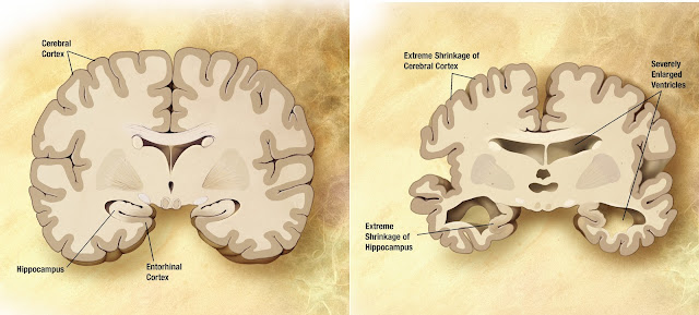 Difference between Alzheimer's brain and normal brain