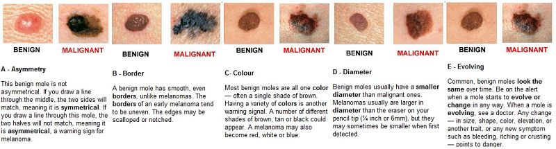 Common Skin Cancer in United States