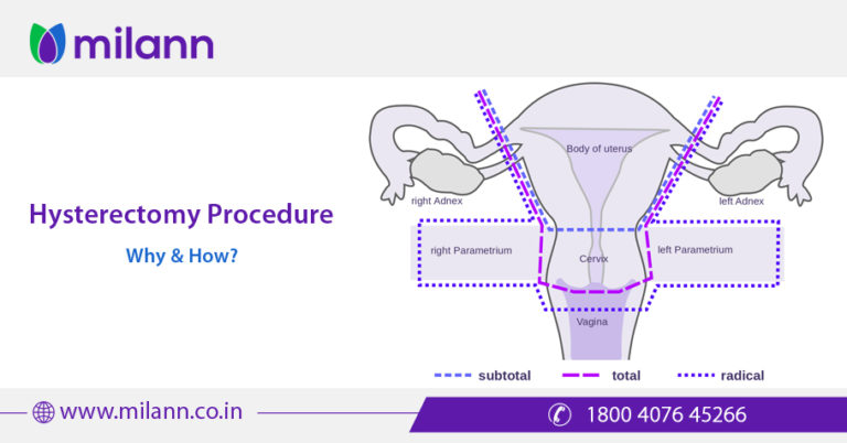 hysterectomy - photo #17