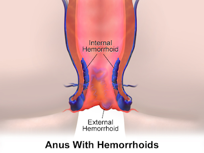 Hemorrhoids (Piles)Symptoms, Complications And Protection Also in hindi