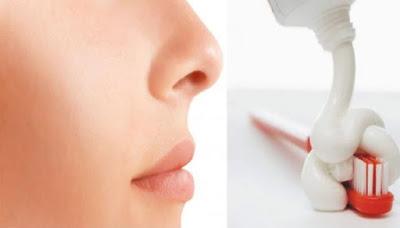 Lenyapkan Komedo Dengan Sejekap Dengan Pasta Gigi Dan Garam